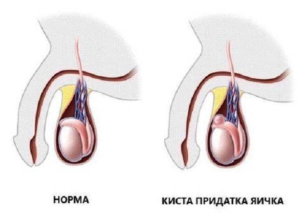 Сперматоцеле или киста яичка у детей и мужчин: код по МКБ-10, признаки, операция