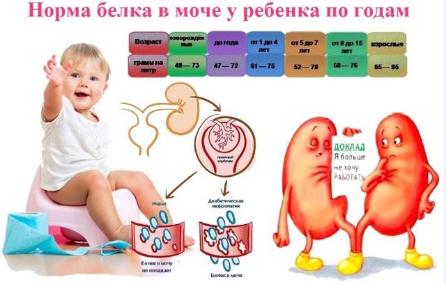 Что означает повышение концентрации белка в моче у ребенка: методы диагностики и лечение