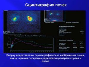 Сцинтиграфия всего тела: почек, печени, легких, молочных желез, цена в Москве и противопоказания