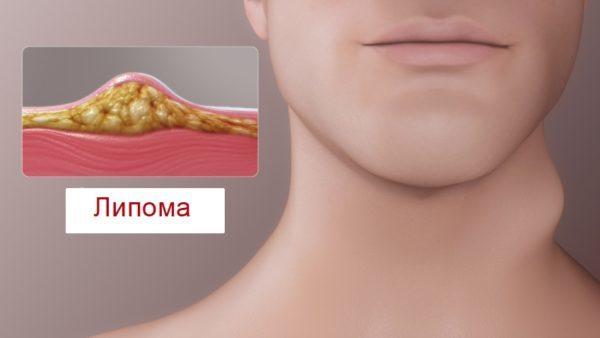 Что такое липома и ее последствие: причины возникновения, фото на шее и ноге, голове и спине