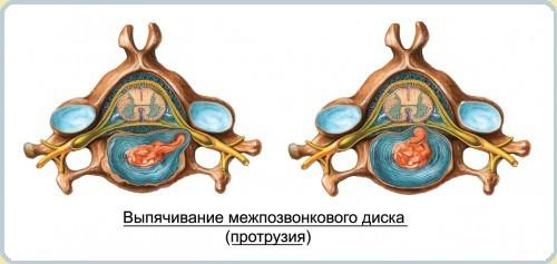 Что такое диффузная протрузия межпозвоночных дисков поясничного (l3, l4, l5, s1) и шейного (c5, c6, c7) отдела: лечение