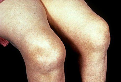 Ювенильный артрит у детей: ревматоидный, идиопатический, хронический, классификация по МКБ-10
