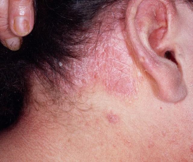 cоскоб с кожи лица, головы: на грибок, на демодекоз, на онкологию