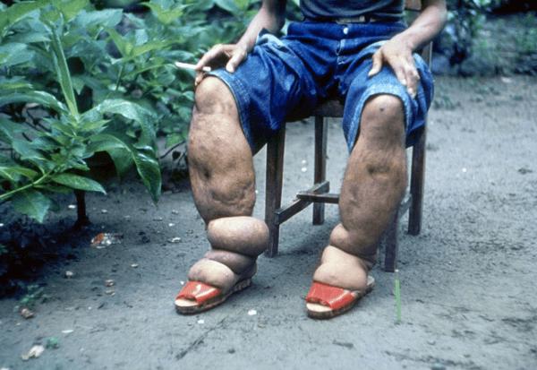 Элефантиаз (слоновость) мошонки: что это, причины, симптомы, лечение