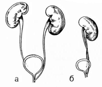 Эктопия устья мочеточника: что это, причины, симптомы, диагностика, лечение