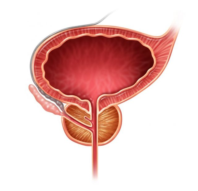 Уретроскопия у мужчин и женщин: показания к процедуре, как проводится, разновидности, противопоказания